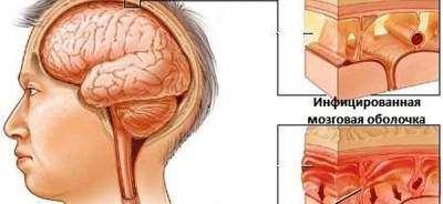 istoriya-moej-bolezni-ili-kak-vrach-izlechilsya-sam-posle-meningita